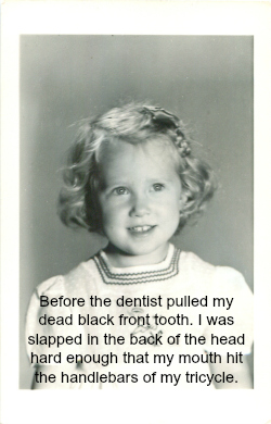 Patsy before tooth died